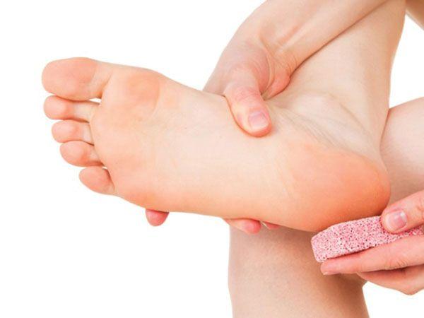 nứt gót chân điều trị loại kem gì